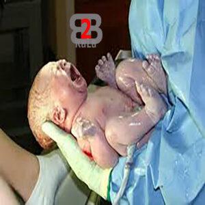 انواع سندروم مرگ ناگهانی نوزادان