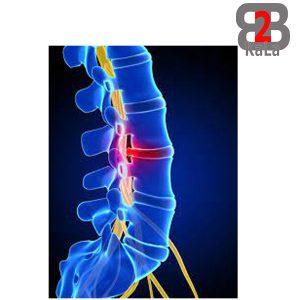 دیسک بین مهره ای و ایجاد کمر درد
